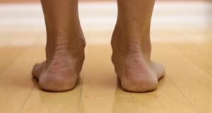 Поперечное плоскостопие: симптомы и лечение, народные средства