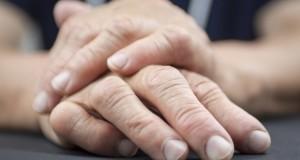 Ревматоидный артрит: симптомы, лечение народными средствами