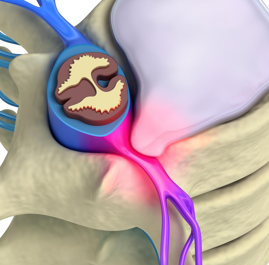 Воспаление седалищного нерва: лечение народными средствами 2