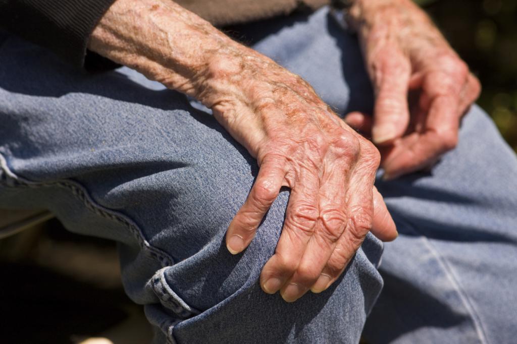 Артроз: лечение народными средствами в домашних условиях 2