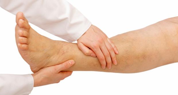 Лимфостаз нижних конечностей: лечение народными средствами