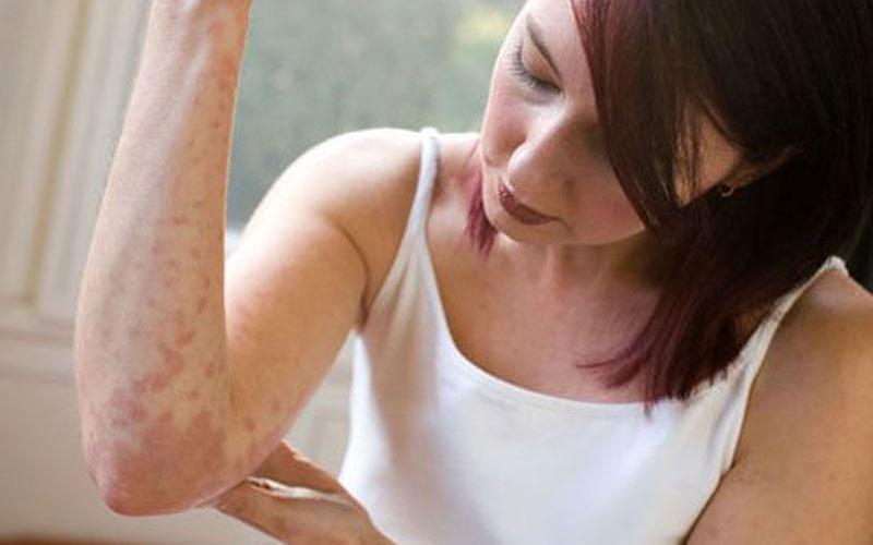 Лечение аллергии народными средствами в домашних условиях 2