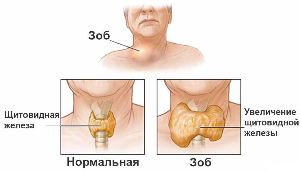 Основные виды струма щитовидной железы