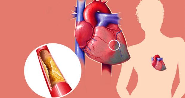Высокий холестерин: причины, как снизить народными средствами