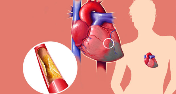 снизить холестерин медикаментами